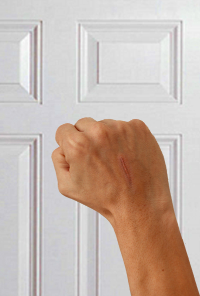 main à la marque cicatricielle frappant à la porte; cicatrice au dos, revers, d'une main, qui frappe à une porte d'entrée de peinture laquée blanche