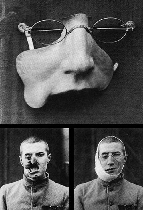 أطراف اصطناعية في الحرب العالمية الأولى