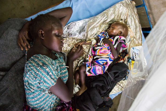 A young girl lies beside a malnourished infant on a intravenous drip in South Sudan.
